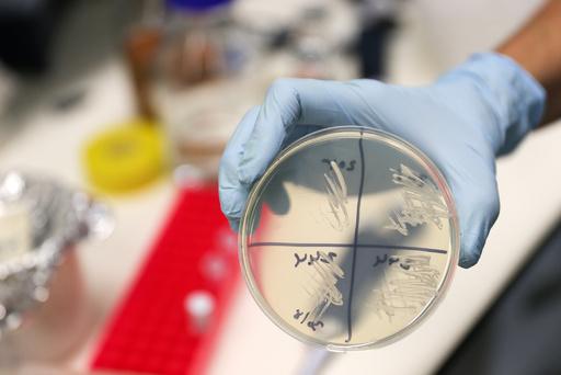 地球最古、10億年前の菌類発見 従来の認識塗り替えるか
