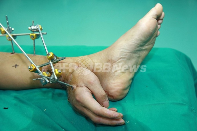 切断された手を足に接続して保存、1か月後に再接合 中国
