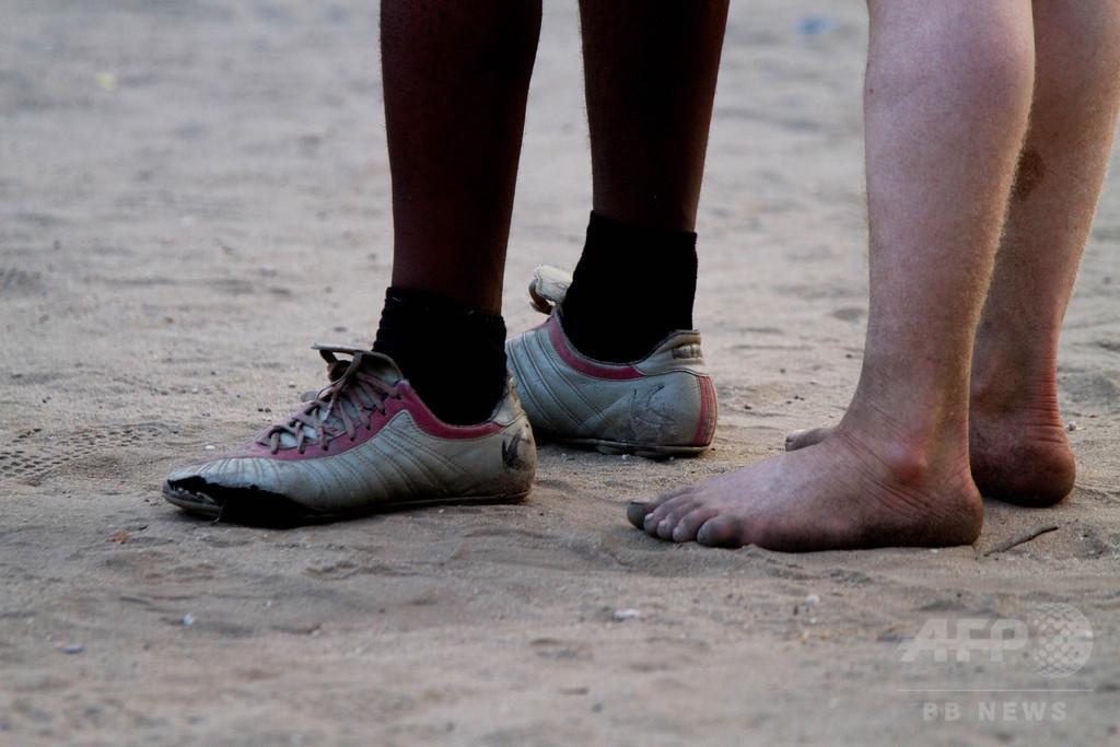 モザンビークでまた「アルビノ狩り」 17歳少年、脳まで奪われる