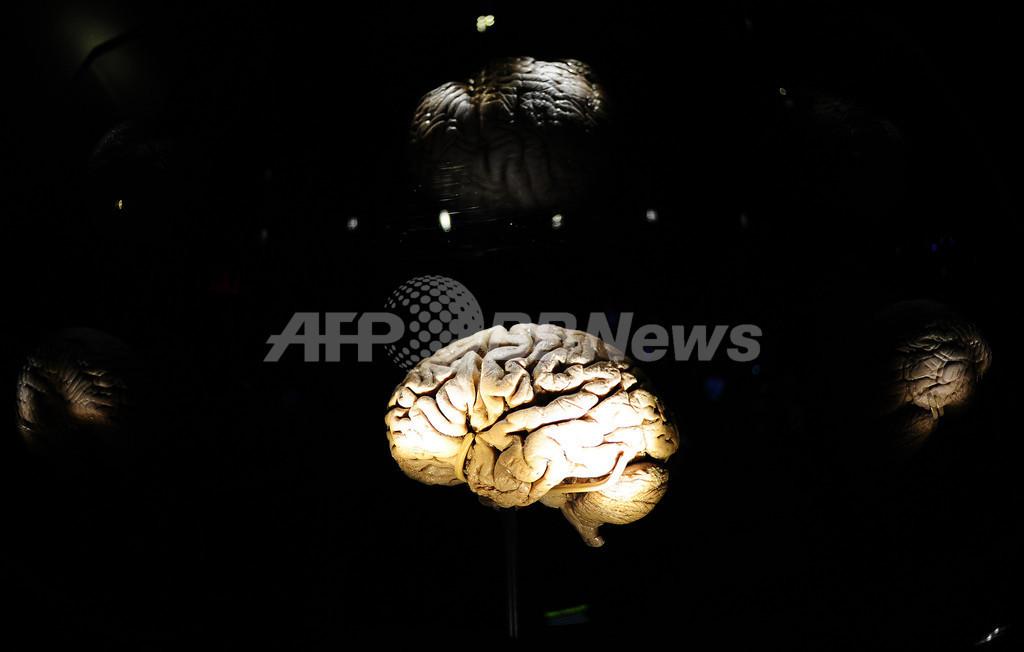 片頭痛、恒久的な脳構造の変化もたらす可能性 研究