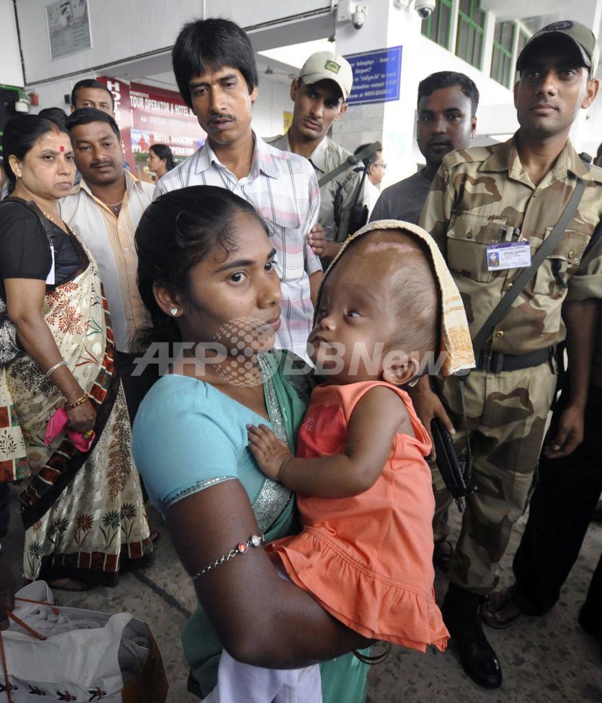 インド水頭症女児が退院、健康状態は大幅に改善