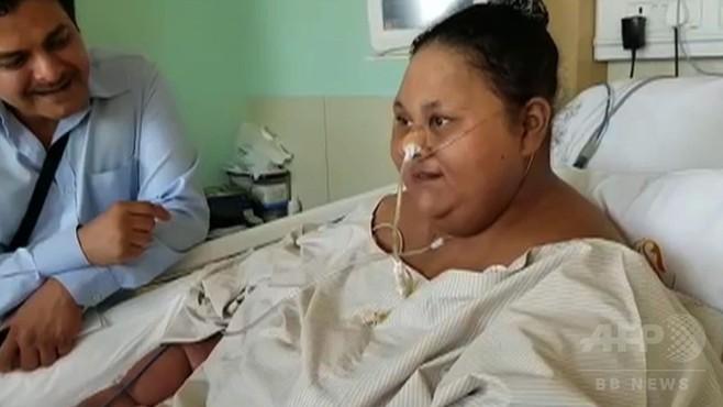 「世界で最も重い女性」、手術などで500キロの体重が半分に