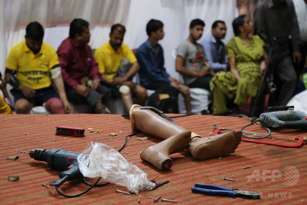 切断した患者の脚を枕代わりに… 医師2人停職処分、インド