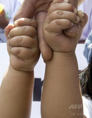 双子のがんリスク、片方発病で上昇 大規模調査