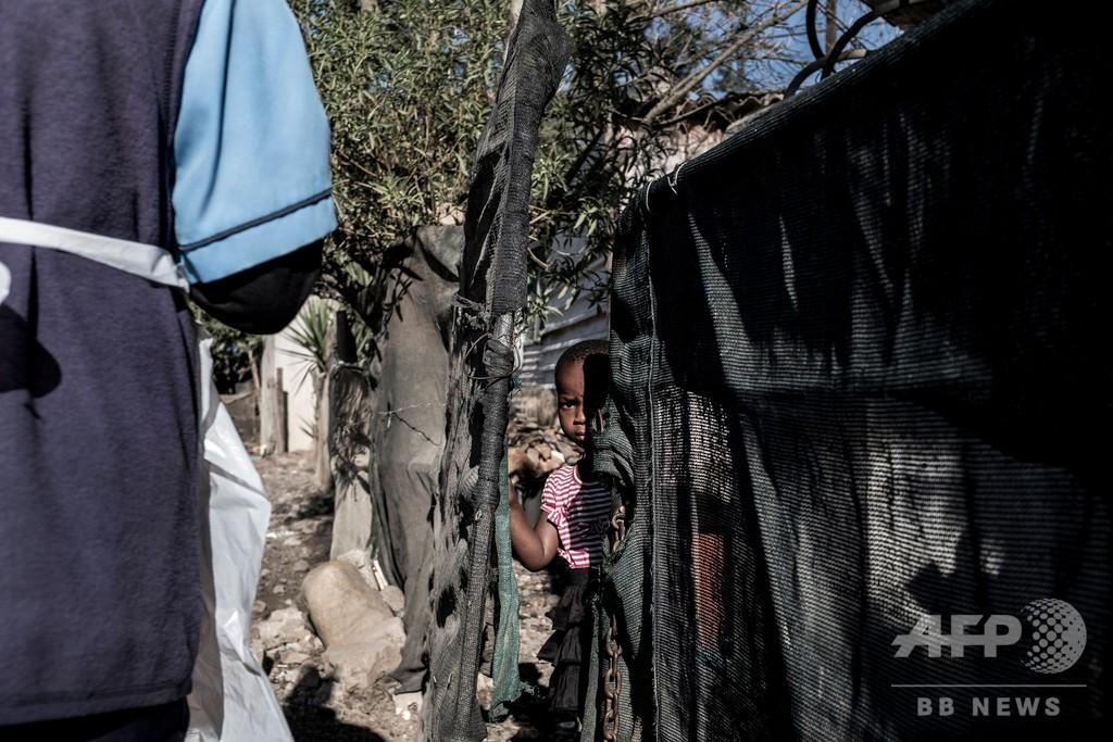アフリカ、ICUベッドと人工呼吸器不足で危機的状況 WHO