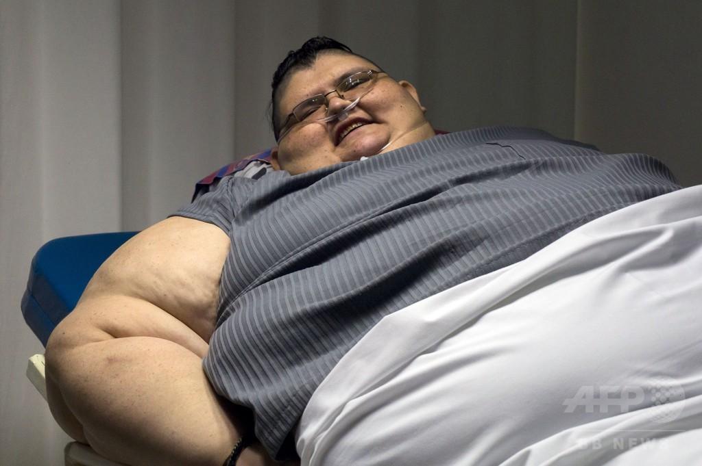 体重590キロの男性、胃バイパス手術へ メキシコ