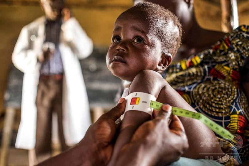 1億800万人が飢餓に直面、途上国...