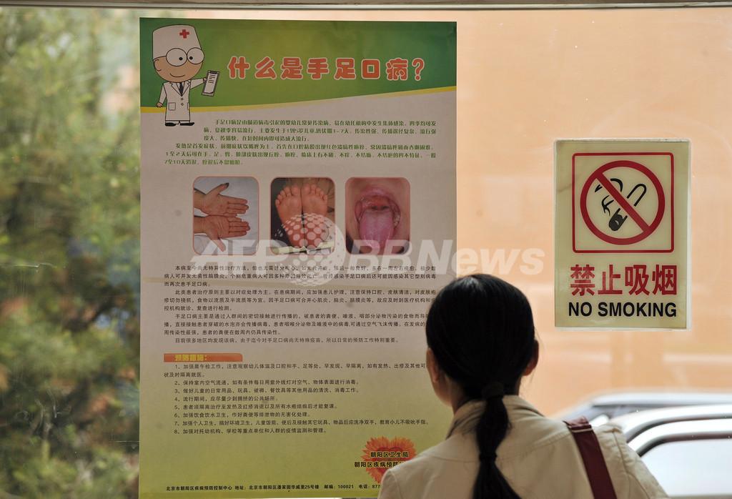 中国の手足口病、北京で初の死者