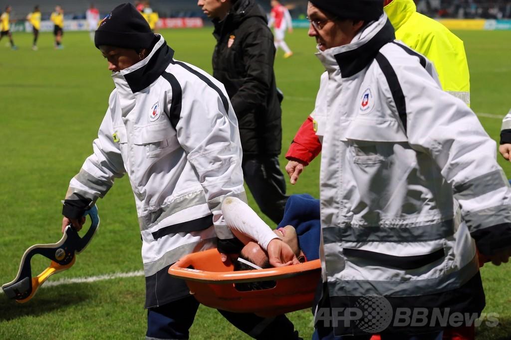 モナコ、ファルカオがフランス杯で負傷交代