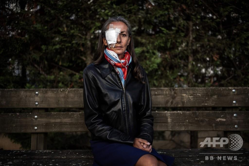 ライダー杯で失明した女性ファン、転倒中の「恐怖」語る