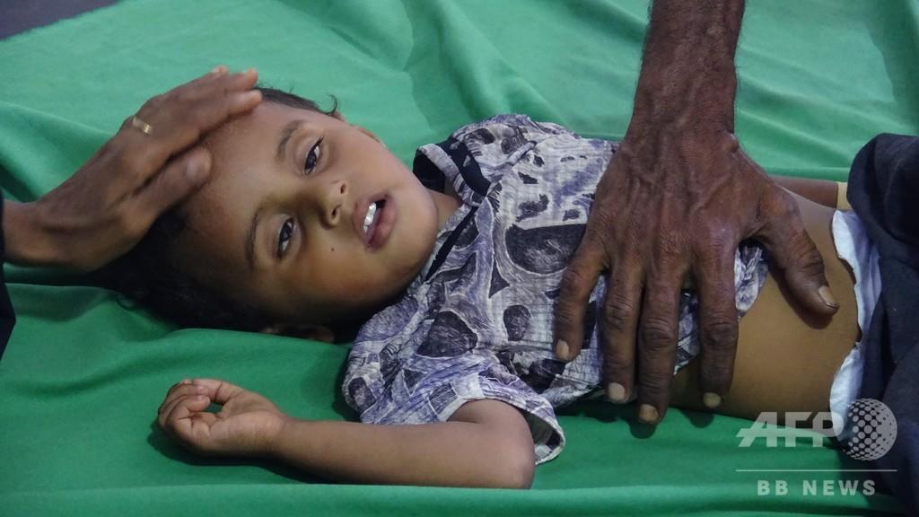 イエメンでコレラ大流行再来の恐れ、国際NGOが警告