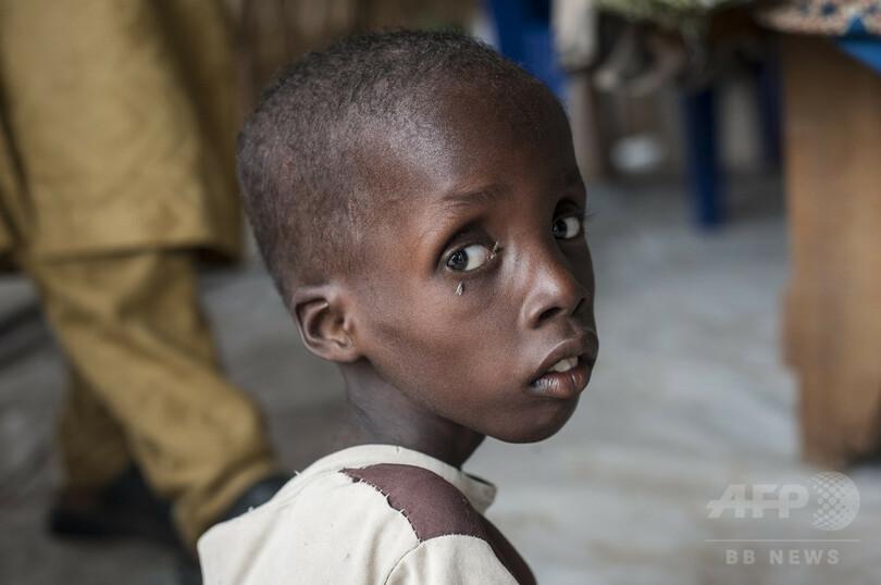 子どもたちに深刻な栄養失調、ボコ・ハラムによる「もう一つの悲劇 ...