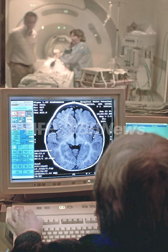 「記憶の抑制」を研究、うつ病やPTSD治療に貢献