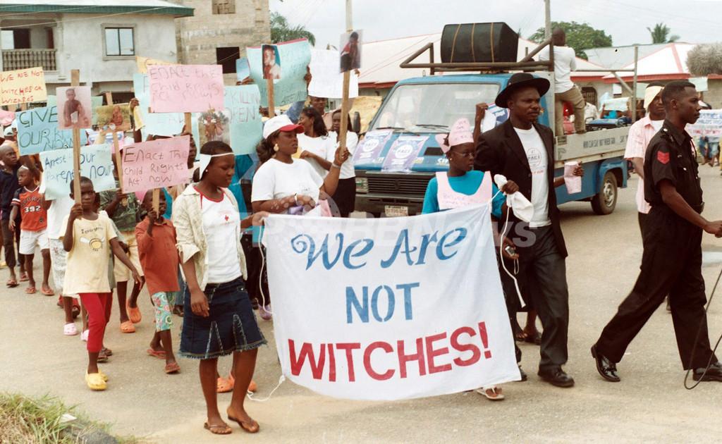 「魔女狩り」にあう子どもたち、父親から火をつけられた少年の体験談 ナイジェリア