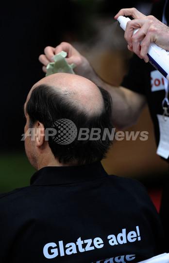 頭頂部薄毛の男性は冠動脈疾患のリスクが高い、東大研究