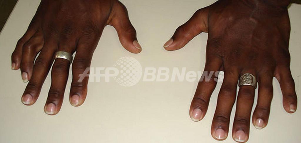 12本の指が動かぬ証拠、麻薬密売人を逮捕 ブラジル