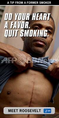 元喫煙者の「生々しい助言」、米当局が反たばこ広告キャンペーン