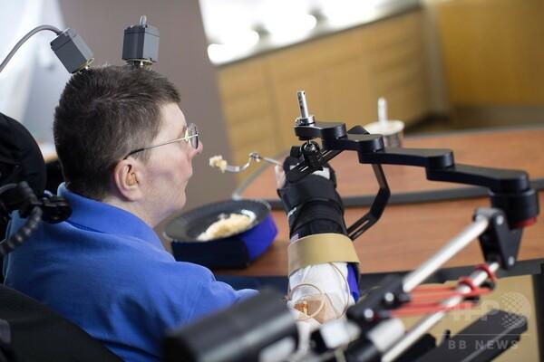 世界初 四肢まひ患者、脳に埋めた電極の信号で自ら食事 報告
