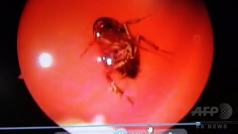 頭蓋骨の間から生きたゴキブリ摘出、就寝中に鼻から侵入 インド