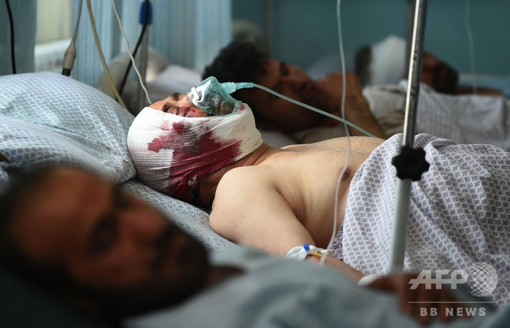 アフガン首都で車爆弾攻撃、6人死亡 子ども50人含む116人負傷