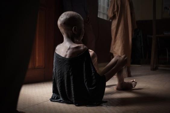 中央アフリカの飢える子どもたち、暴力と貧困が引き起こす飢餓危機
