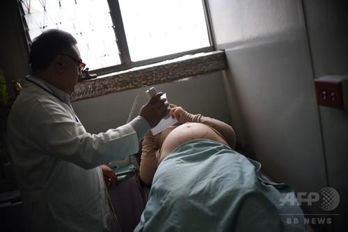 妊婦のジカ熱感染、欧州で初めて確認 スペイン帰国の女性