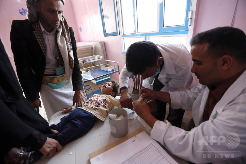 イエメンのコレラ感染者、年内に85万人まで増加の恐れ 赤十字