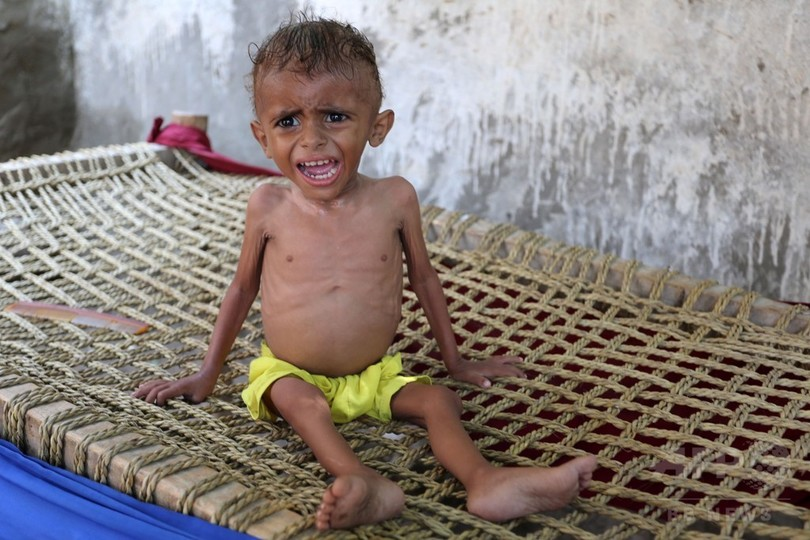 イエメン、子どもの栄養失調「極...
