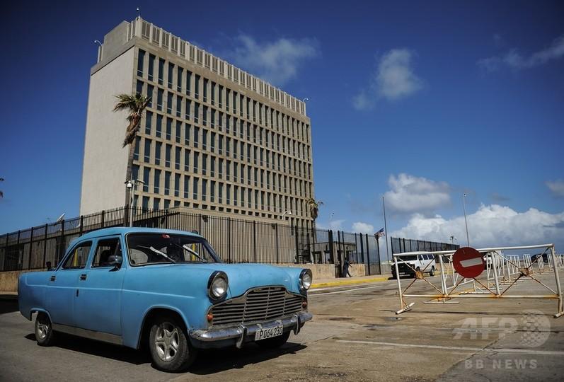 キューバで音響攻撃を受けたとする米外交官ら、「捉えどころのない」脳内損傷か