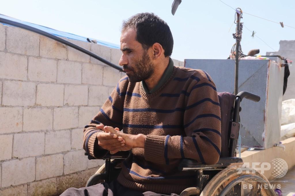 両脚両目も失った…体に刻まれる「紛争の地図」 シリア内戦10年目