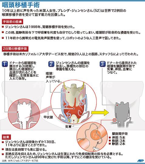 世界2例目の咽頭移植手術で発声能力回復、米女性