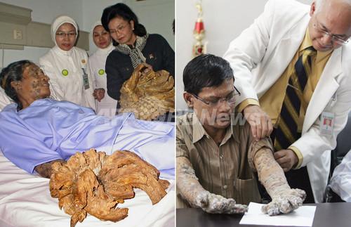 インドネシアの「樹木男」、手足から重さ6キロのイボ除去に成功