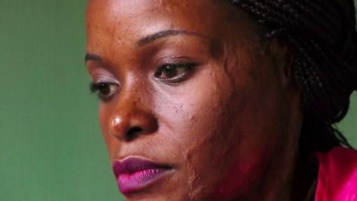 動画:骨に届くまで溶ける痛み─裁きを求める酸攻撃の被害者たち ウガンダ