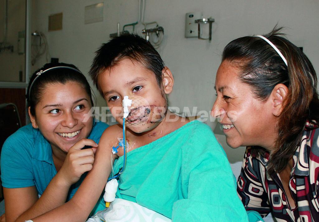 犬に顔を食いちぎられた7歳少年、顔面再移植手術が成功 メキシコ