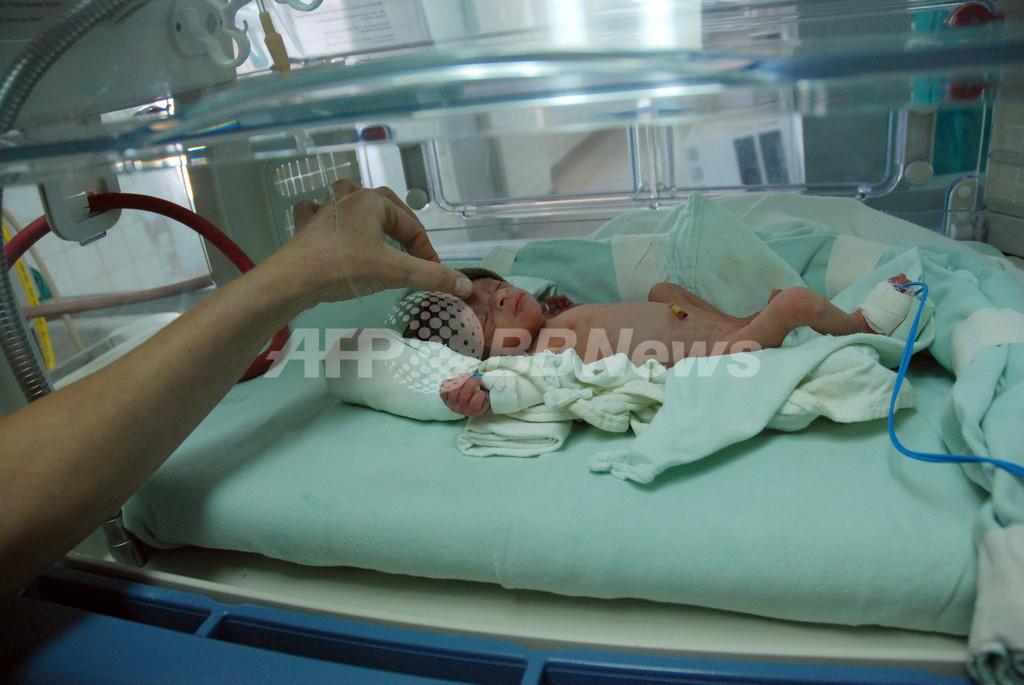 早産予防にペッサリーが効果、スペイン研究