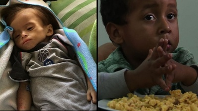 動画:生後15か月でも新生児と同じ体重、ベネズエラ危機で子どもたちが栄養失調に