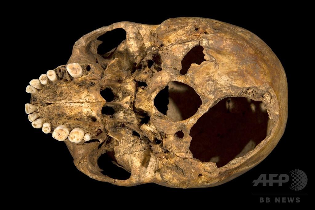 リチャード3世の「凄惨な死」、遺骨から明らかに
