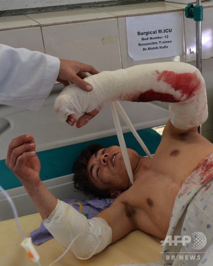 アフガンで自爆攻撃、建設会社の従業員16人死亡
