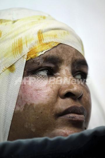 カダフィ大佐の息子妻から虐待、「熱湯かけられやけど」乳母が訴え