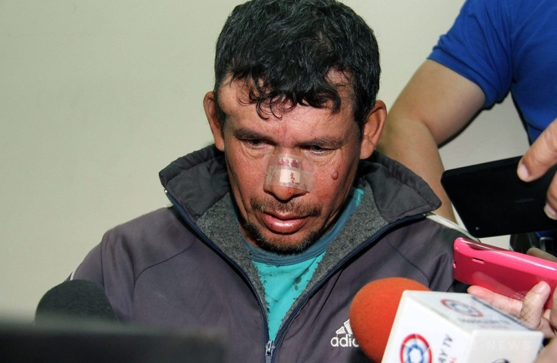 10歳少女妊娠、暴行疑いの継父を逮捕 パラグアイ