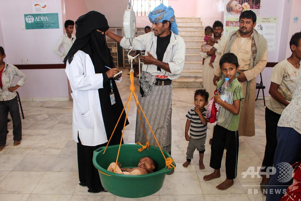 イエメン「世界最悪の人道危機」さらに悪化、新たに350万人が飢餓の恐れ