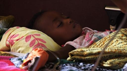 動画:マダガスカルで麻疹患者が急増、直近4か月で922人死亡