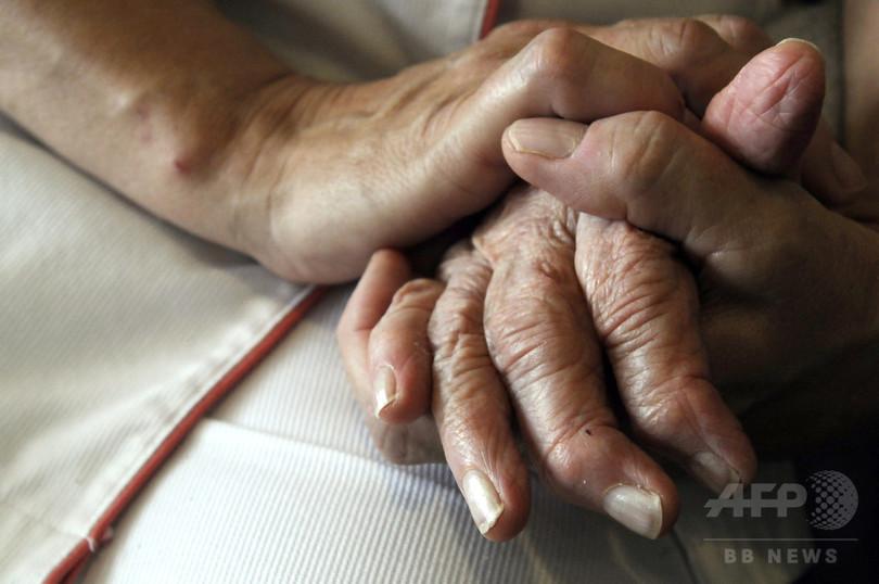 アルツハイマー病、女性の方が速く進行 米研究