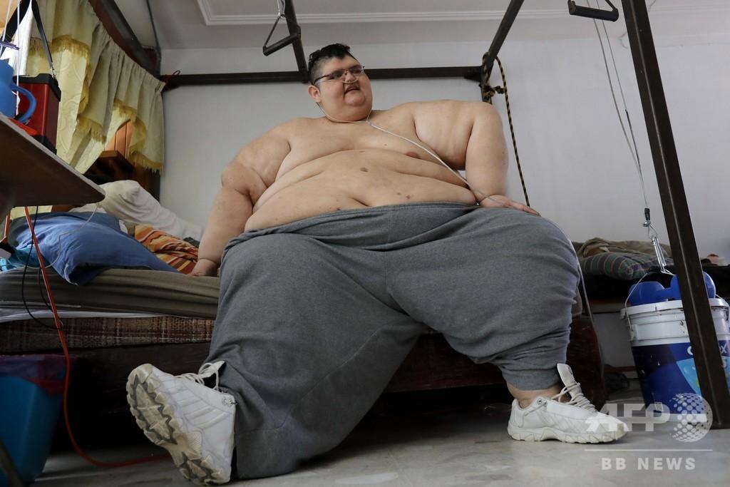 世界で最も重かった男性、コロナを克服 減量治療のおかげ?