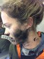 機内でヘッドホンが発火、乗客がやけど 電池が原因か