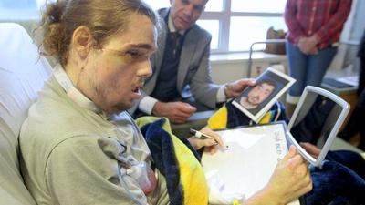 動画:臓器提供で顔面移植手術、新しい顔を手に 米国