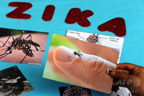 ジカウイルス、感染から2か月間精液に残存 英公衆衛生サービス