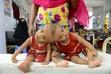 1歳の結合双生児、分離手術を検討 バングラデシュ
