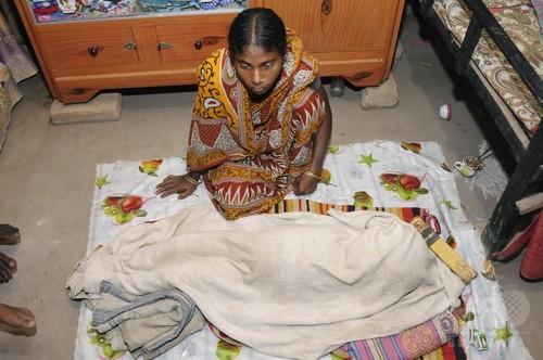 水頭症を患った5歳女児、息苦しさ訴え突然死 インド