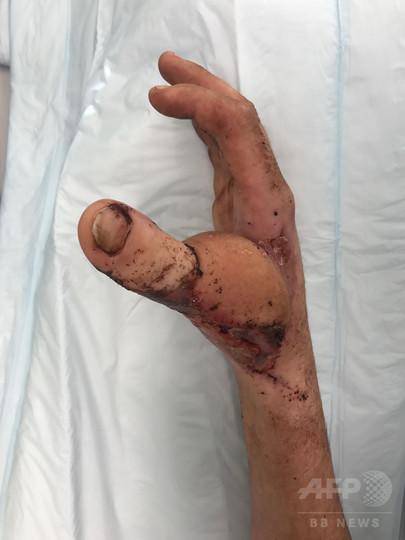 手の親指切断の豪男性、手術で足の親指を手に移植
